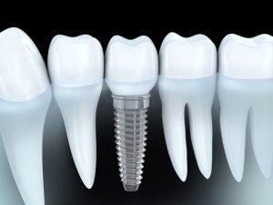 Dr David Fisher Dental Implants