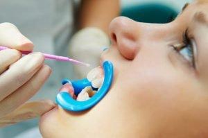 Dr David Fisher Dental Sealants