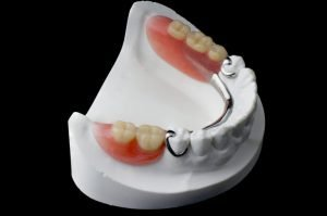 Dr David Fisher Partial Dentures