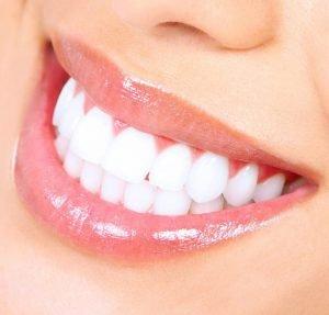 Dr David Fisher Teeth Whitening