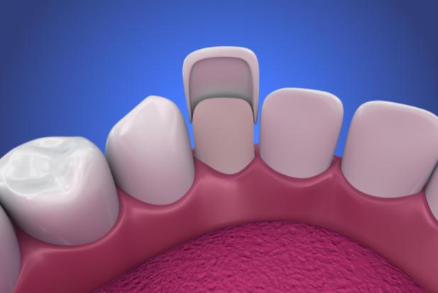 Dental veneers 3D image